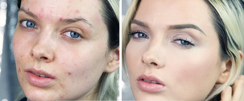 you-look-disgusting-la-beauty-blogger-con-l-acne-commuove-il-web-video-3837524363[1263]x[525]780x325