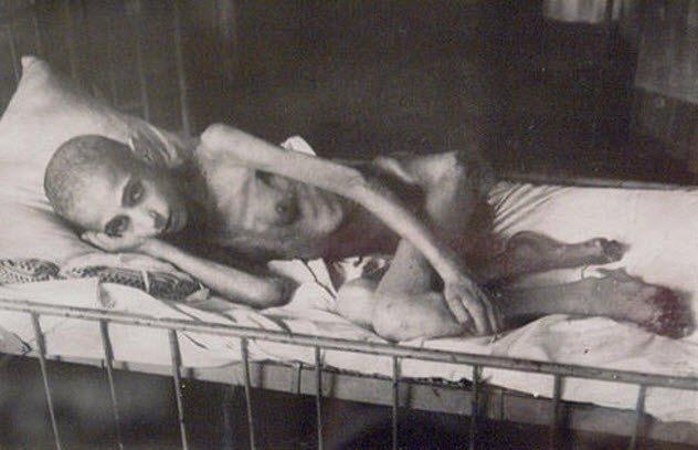 3a-starvation-victim-leningrad-siege